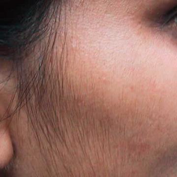 Facial Hair Growth In Females